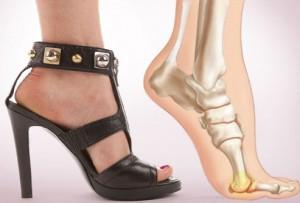 nouveau concept e9e11 a2bed Ne plus avoir mal aux pieds en talons ? | MISSGLAMAZONE